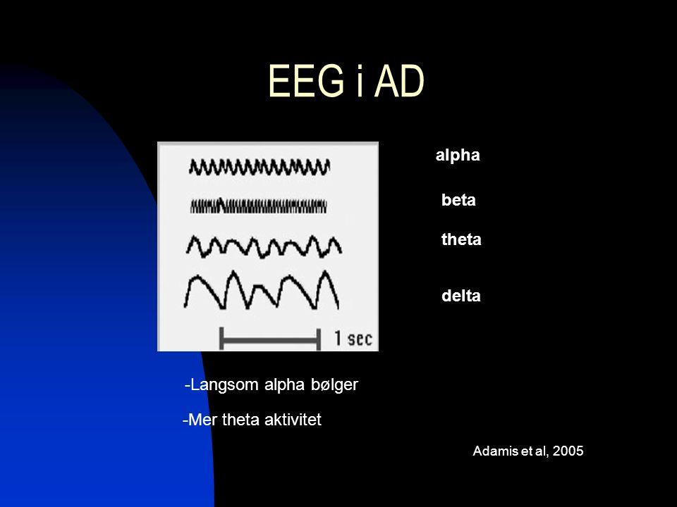 EEG i AD alpha beta theta delta -Langsom alpha bølger -Mer theta aktivitet Adamis et al, 2005