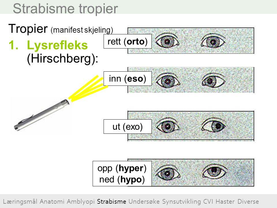 Strabisme tropier Tropier (manifest skjeling) 1.Lysrefleks (Hirschberg): inn (eso) ut (exo) rett (orto) opp (hyper) ned (hypo) Læringsmål Anatomi Ambl