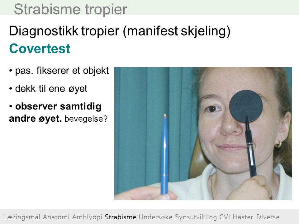 Strabisme tropier Diagnostikk tropier (manifest skjeling) Covertest pas. fikserer et objekt dekk til ene øyet observer samtidig andre øyet. bevegelse?