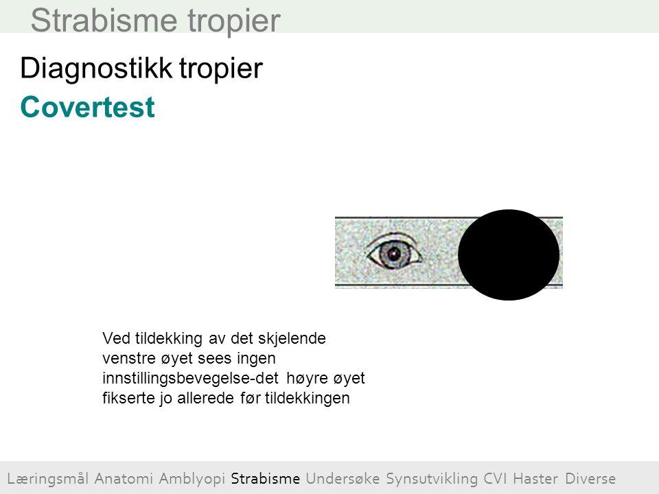 Strabisme tropier Diagnostikk tropier Covertest Ved tildekking av det skjelende venstre øyet sees ingen innstillingsbevegelse-det høyre øyet fikserte