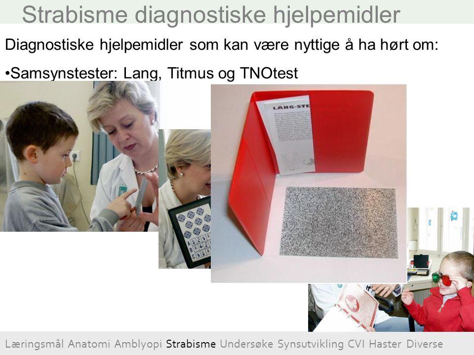 Strabisme diagnostiske hjelpemidler Diagnostiske hjelpemidler som kan være nyttige å ha hørt om: Samsynstester: Lang, Titmus og TNOtest Læringsmål Ana