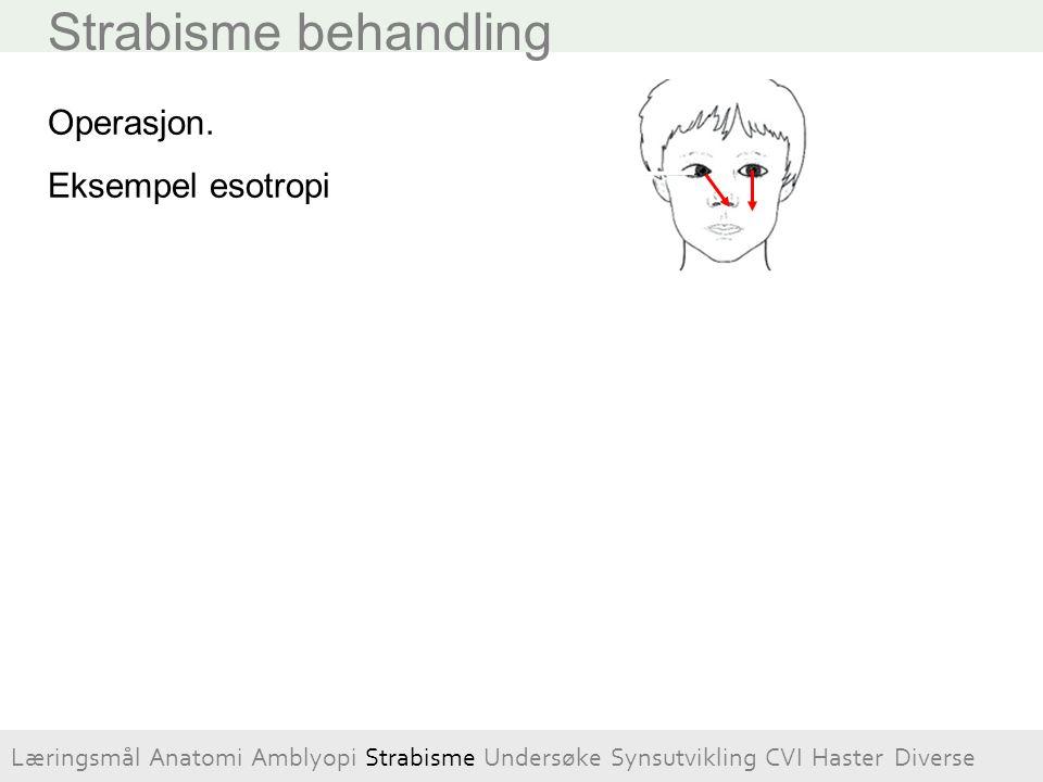Strabisme behandling Operasjon. Eksempel esotropi Rectus medialis svekkes ved å flyttes bakover Rectus lateralis styrkes ved forkorting Læringsmål Ana