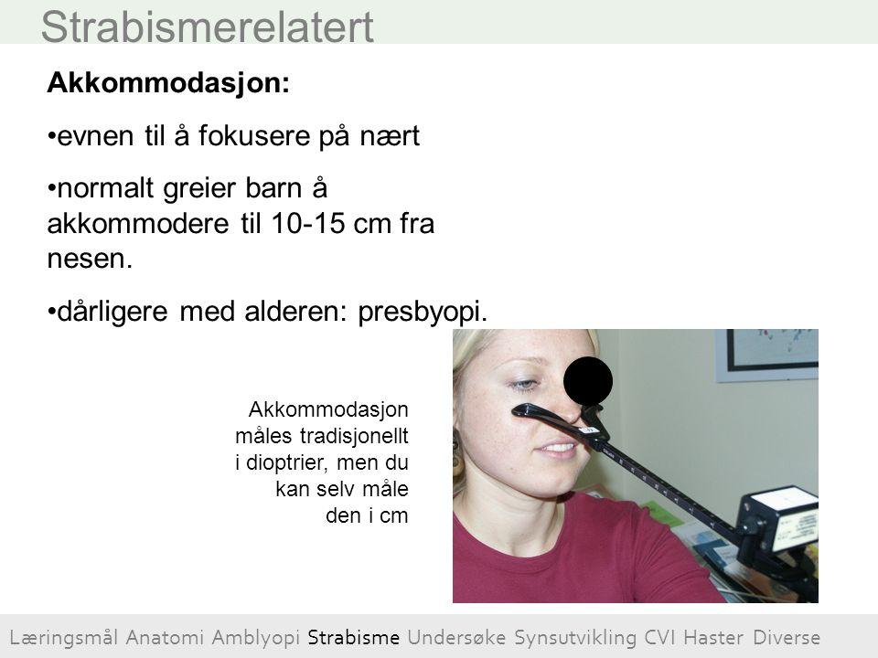 Strabismerelatert Akkommodasjon: evnen til å fokusere på nært normalt greier barn å akkommodere til 10-15 cm fra nesen. dårligere med alderen: presbyo