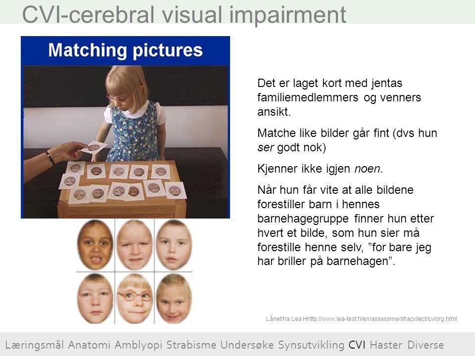 CVI-cerebral visual impairment Det er laget kort med jentas familiemedlemmers og venners ansikt. Matche like bilder går fint (dvs hun ser godt nok) Kj