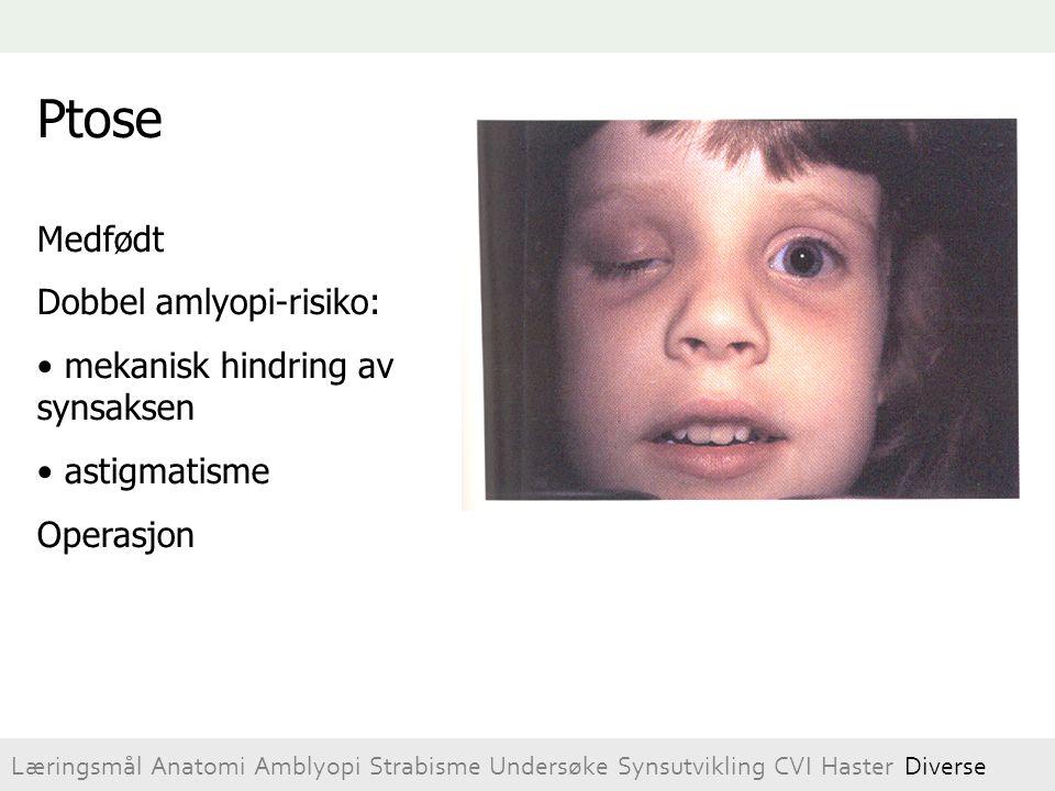 Ptose Medfødt Dobbel amlyopi-risiko: mekanisk hindring av synsaksen astigmatisme Operasjon Læringsmål Anatomi Amblyopi Strabisme Undersøke Synsutvikli