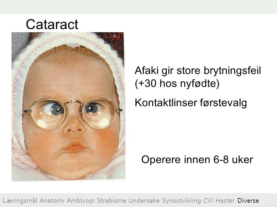 Afaki gir store brytningsfeil (+30 hos nyfødte) Kontaktlinser førstevalg Cataract Operere innen 6-8 uker Læringsmål Anatomi Amblyopi Strabisme Undersø