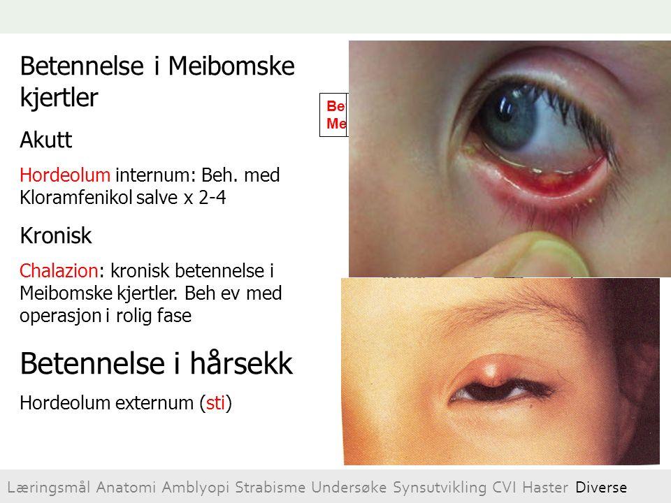 Betennelse i Meibomske kjertler Akutt Hordeolum internum: Beh. med Kloramfenikol salve x 2-4 Kronisk Chalazion: kronisk betennelse i Meibomske kjertle