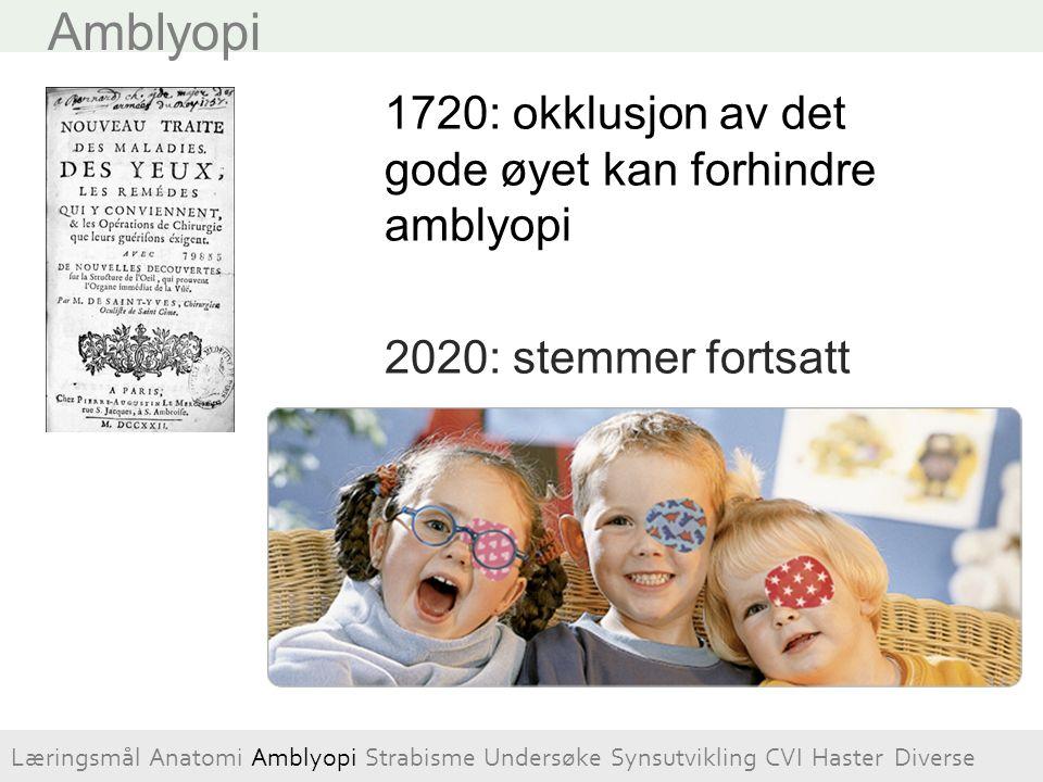 Amblyopi 1720: okklusjon av det gode øyet kan forhindre amblyopi 2020: stemmer fortsatt Læringsmål Anatomi Amblyopi Strabisme Undersøke Synsutvikling