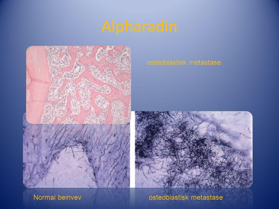 Alpharadin osteoblastisk metastase Normal beinvevosteoblastisk metastase