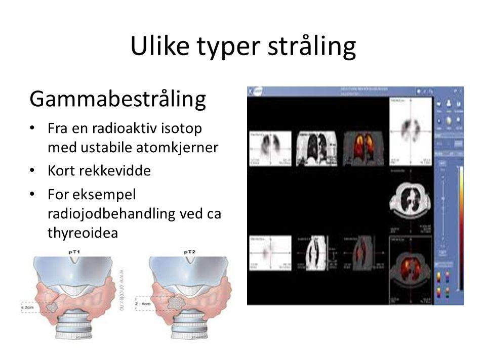 Ulike typer stråling Gammabestråling Fra en radioaktiv isotop med ustabile atomkjerner Kort rekkevidde For eksempel radiojodbehandling ved ca thyreoidea