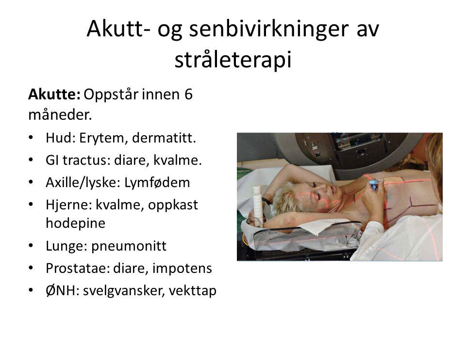 Akutt- og senbivirkninger av stråleterapi Akutte: Oppstår innen 6 måneder.