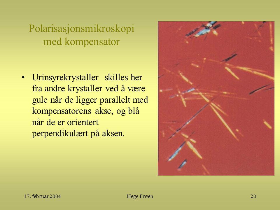 17. februar 2004Hege Frøen20 Polarisasjonsmikroskopi med kompensator Urinsyrekrystaller skilles her fra andre krystaller ved å være gule når de ligger
