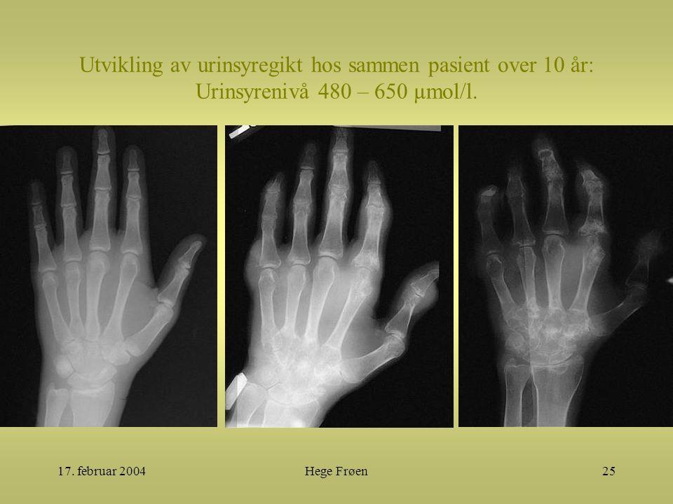 17. februar 2004Hege Frøen25 Utvikling av urinsyregikt hos sammen pasient over 10 år: Urinsyrenivå 480 – 650 µmol/l.