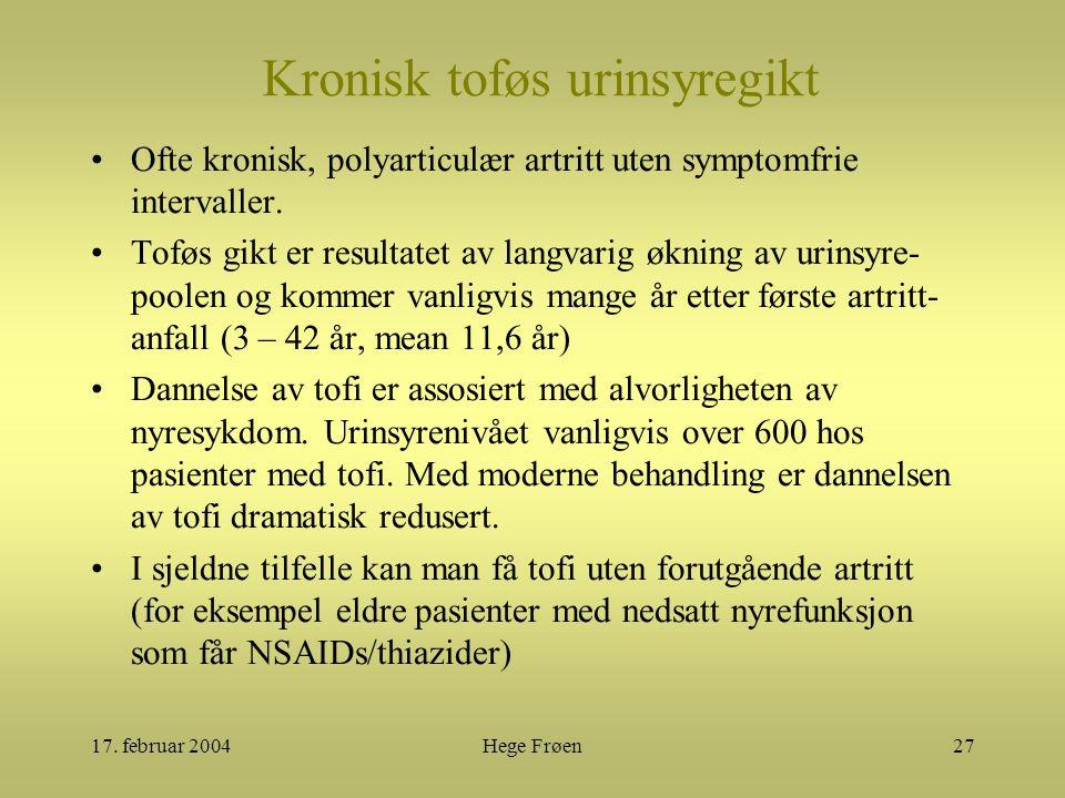 17. februar 2004Hege Frøen27 Kronisk toføs urinsyregikt Ofte kronisk, polyarticulær artritt uten symptomfrie intervaller. Toføs gikt er resultatet av