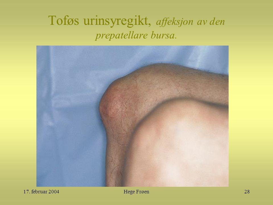 17. februar 2004Hege Frøen28 Toføs urinsyregikt, affeksjon av den prepatellare bursa.