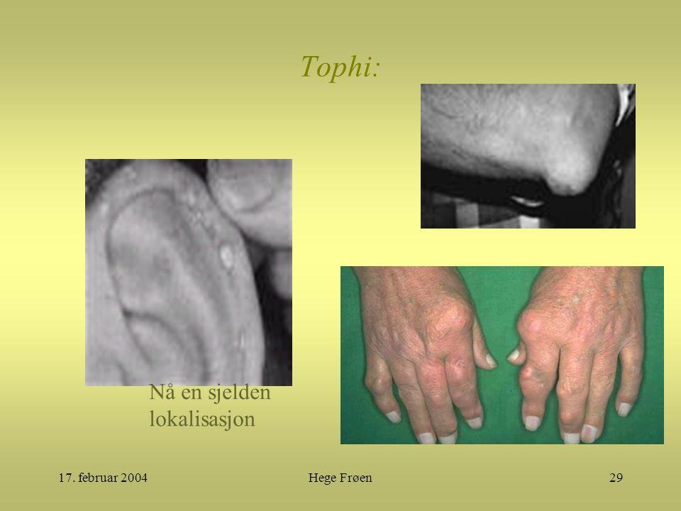 17. februar 2004Hege Frøen29 Tophi: Nå en sjelden lokalisasjon