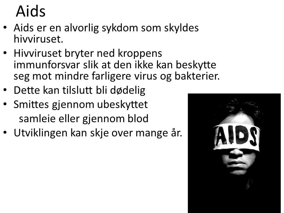 Aids Aids er en alvorlig sykdom som skyldes hivviruset.