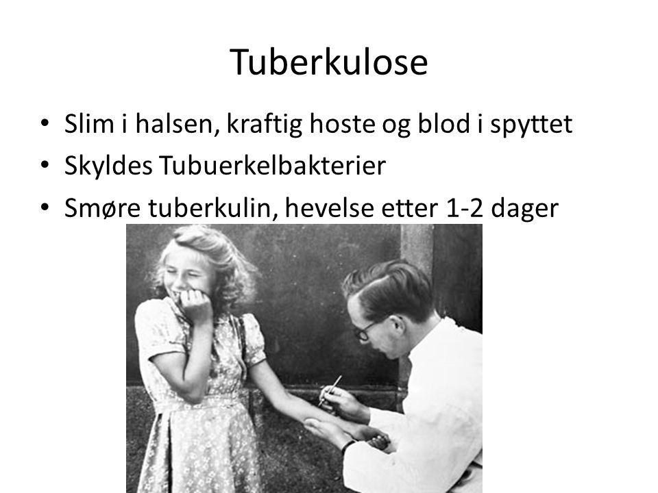 Tuberkulose Slim i halsen, kraftig hoste og blod i spyttet Skyldes Tubuerkelbakterier Smøre tuberkulin, hevelse etter 1-2 dager