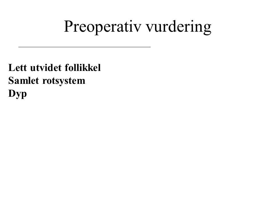 Preoperativ vurdering Lett utvidet follikkel Samlet rotsystem Dyp