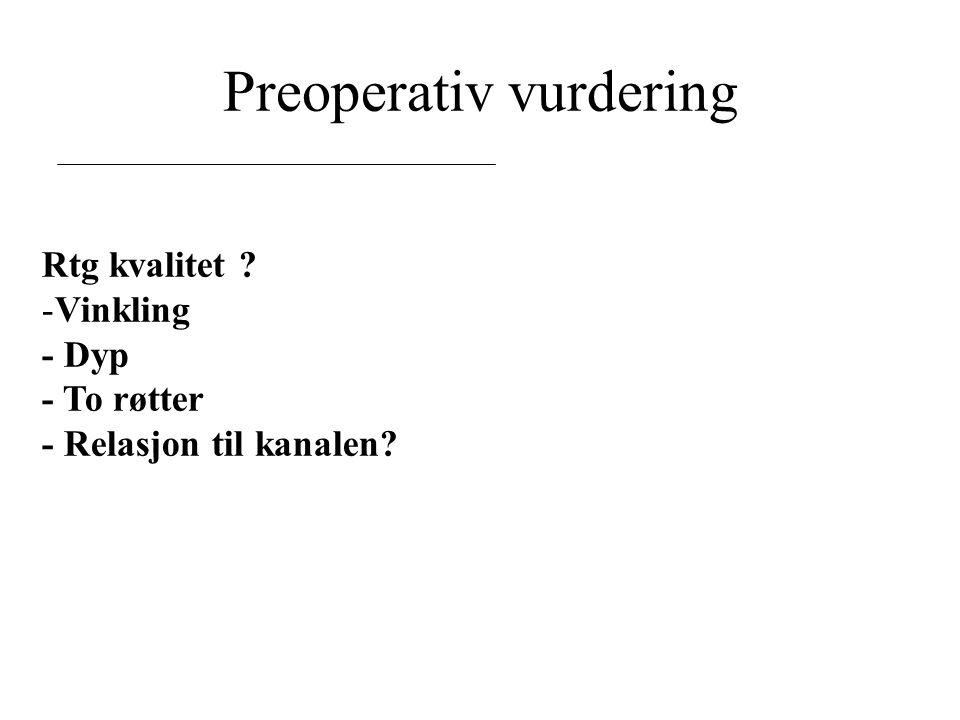 Preoperativ vurdering Rtg kvalitet -Vinkling - Dyp - To røtter - Relasjon til kanalen