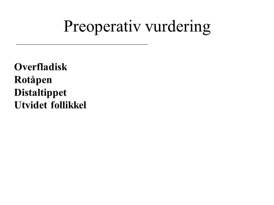 Preoperativ vurdering Overfladisk Rotåpen Distaltippet Utvidet follikkel