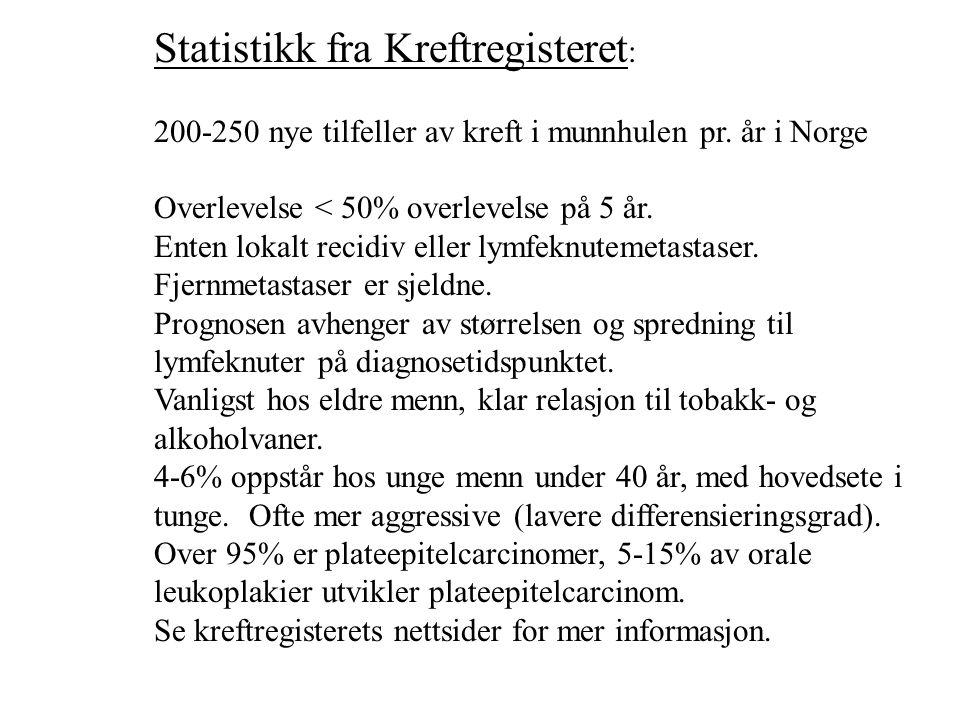Statistikk fra Kreftregisteret : 200-250 nye tilfeller av kreft i munnhulen pr.