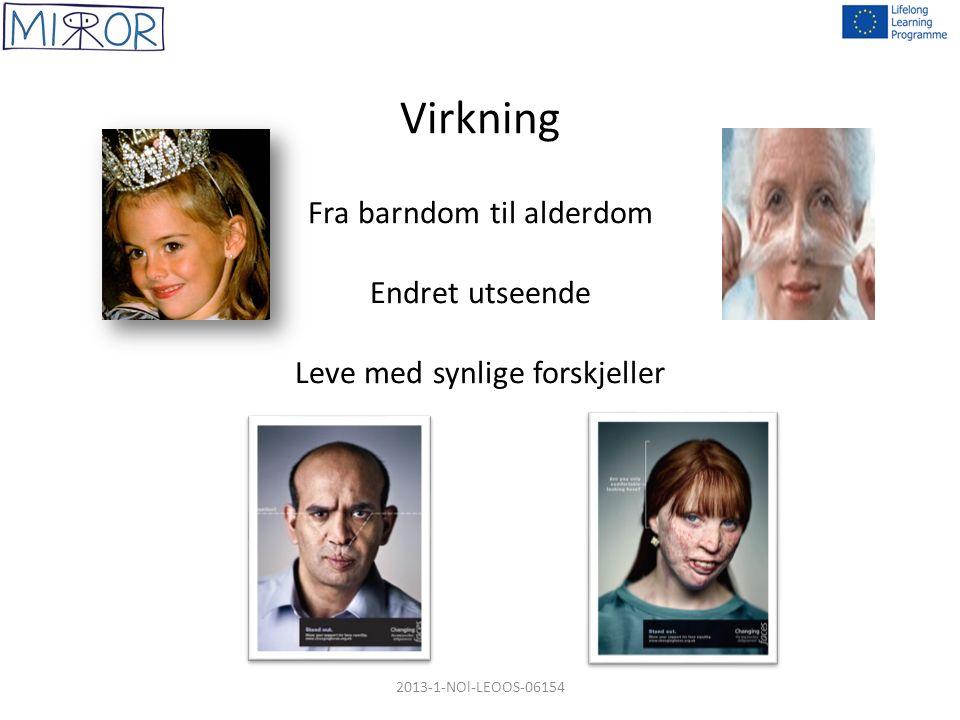 Virkning Fra barndom til alderdom Endret utseende Leve med synlige forskjeller 2013-1-NOl-LEOOS-06154