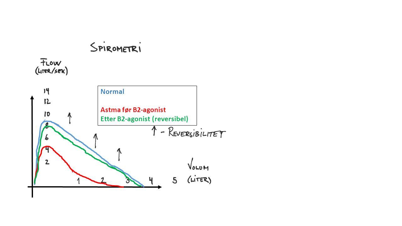 Normal Astma før B2-agonist Etter B2-agonist (reversibel)