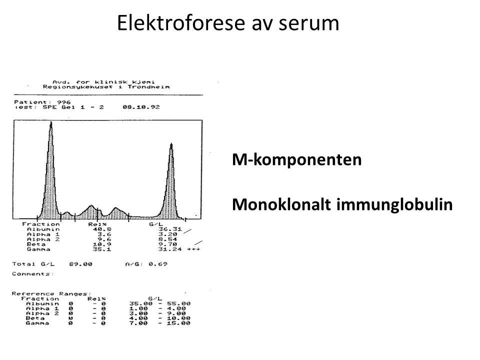 Elektroforese av serum M-komponenten Monoklonalt immunglobulin