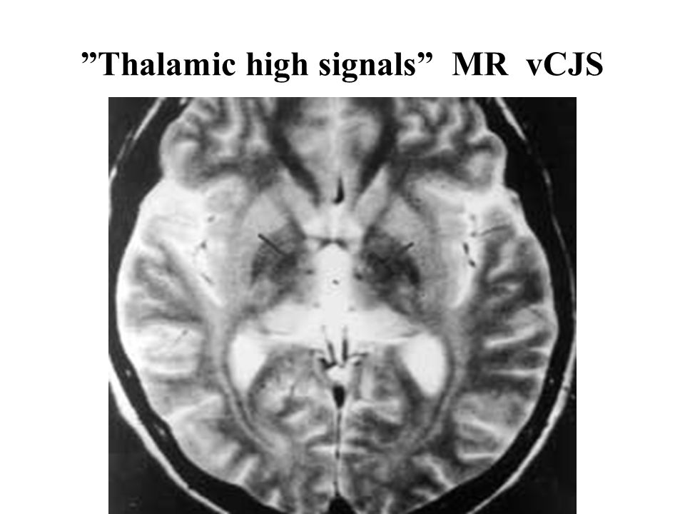 Thalamic high signals MR vCJS