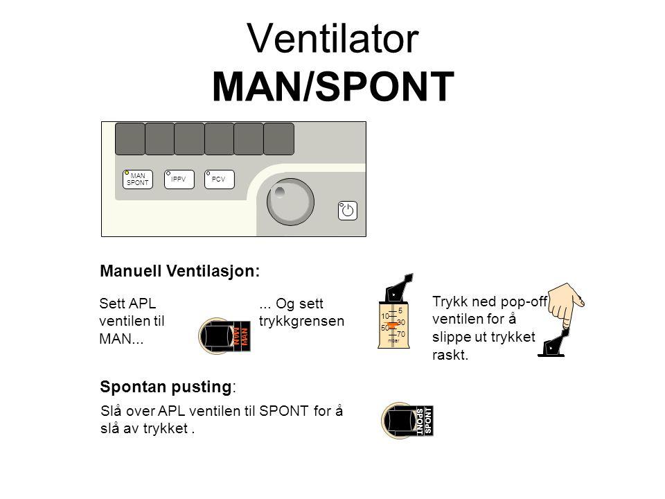 mbar 5 10 50 70 30 Manuell Ventilasjon: Spontan pusting: Slå over APL ventilen til SPONT for å slå av trykket.
