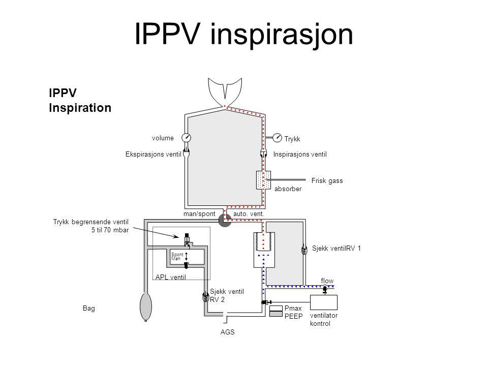 IPPV Inspiration Spont Man flow volume Inspirasjons ventil absorber man/spont Ekspirasjons ventil Bag Sjekk ventilRV 1 auto.