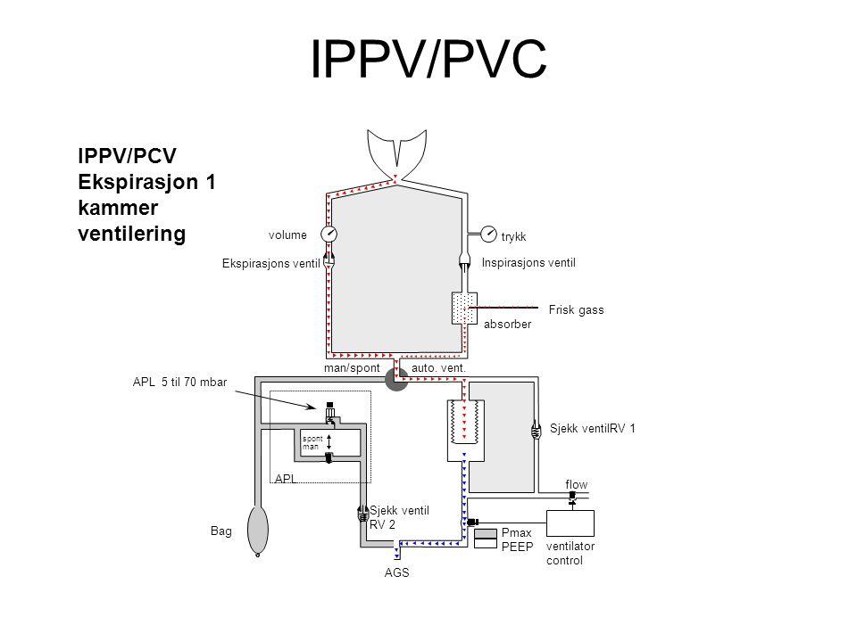 IPPV/PCV Ekspirasjon 1 kammer ventilering spont man flow volume Inspirasjons ventil absorber man/spont Ekspirasjons ventil Bag Sjekk ventilRV 1 auto.