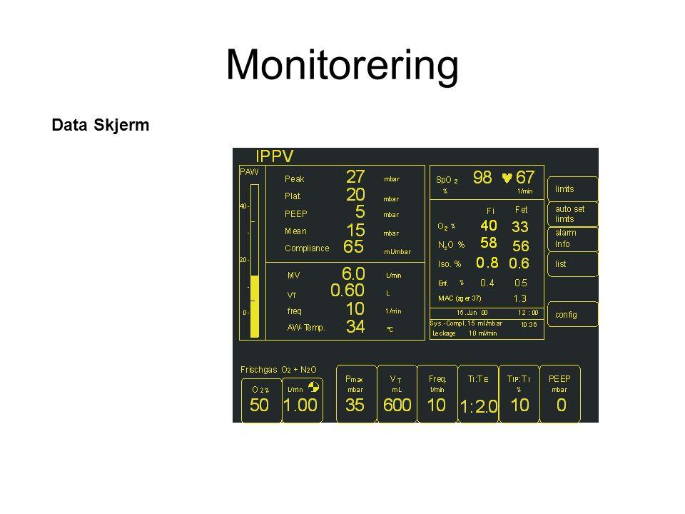 Data Skjerm Monitorering