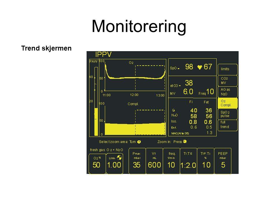 Trend skjermen Monitorering