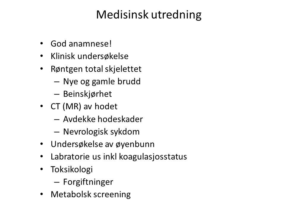 Medisinsk utredning God anamnese! Klinisk undersøkelse Røntgen total skjelettet – Nye og gamle brudd – Beinskjørhet CT (MR) av hodet – Avdekke hodeska