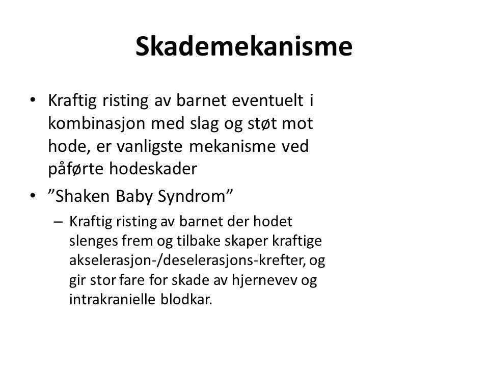 Rettsmedisin - Dokumentasjon Potensielle saker for barnevern, straffe- og sivilrett.