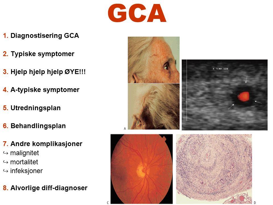 GCA 1. Diagnostisering GCA 2. Typiske symptomer 3. Hjelp hjelp hjelp ØYE!!! 4. A-typiske symptomer 5. Utredningsplan 6. Behandlingsplan 7. Andre kompl