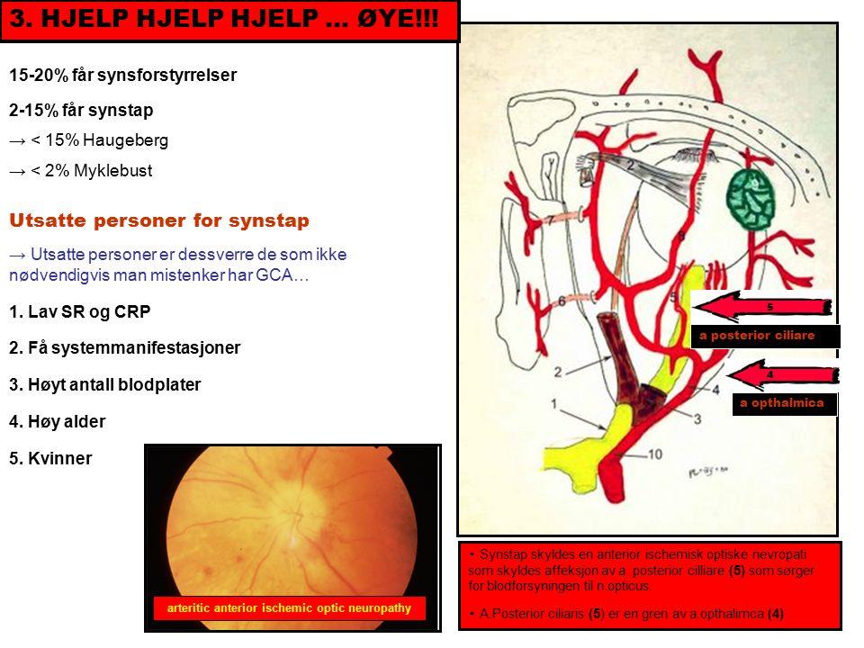 ▪ Synstap skyldes en anterior ischemisk optiske nevropati som skyldes affeksjon av a.