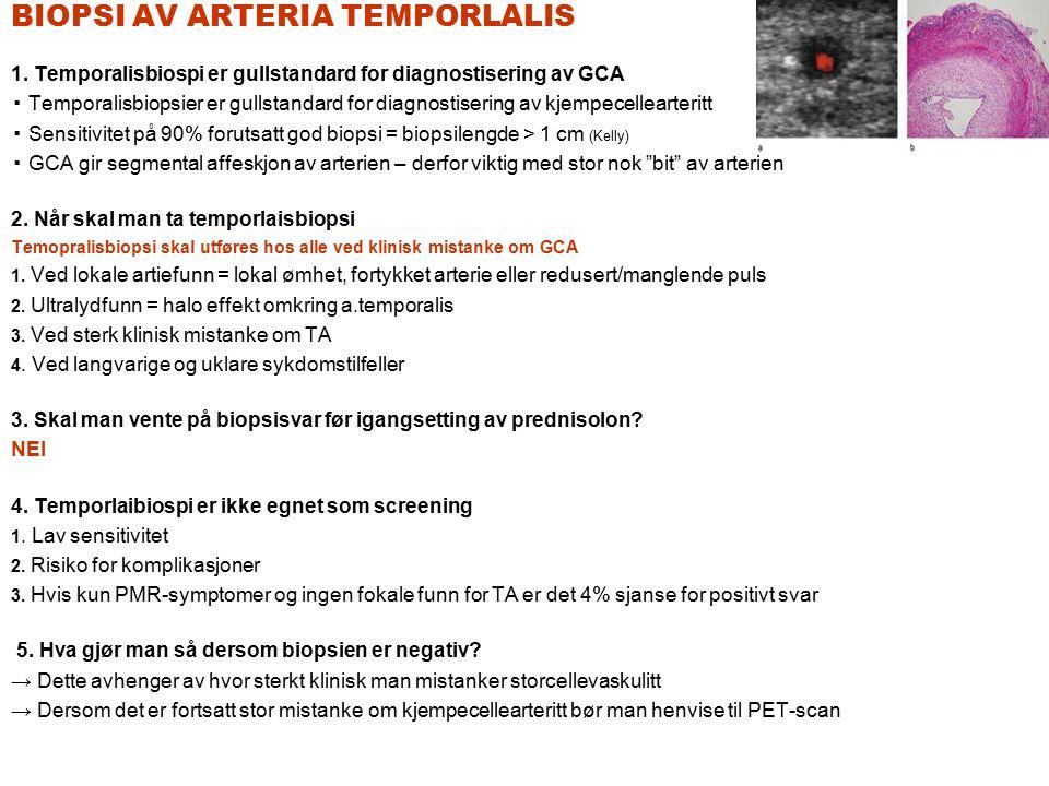 BIOPSI AV ARTERIA TEMPORLALIS 1. Temporalisbiospi er gullstandard for diagnostisering av GCA ▪ Temporalisbiopsier er gullstandard for diagnostisering