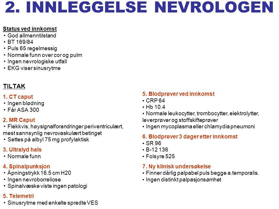 GCA 1.Diagnostisering GCA 2. Typiske symptomer 3.