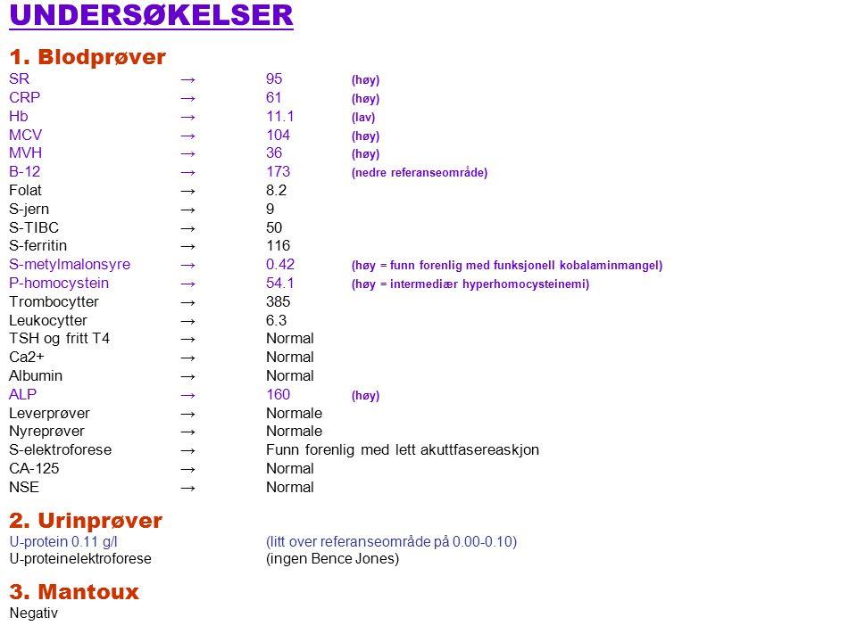 1.PREDNISOLON Startdosen avhenger av symptomer 1.