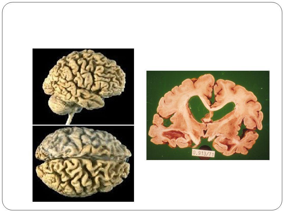 Aggregert beta- amyloid