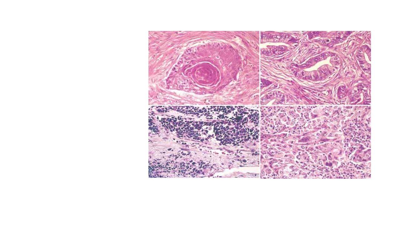 Behandling Kirurgisk behandling (ikke-småcellet) Ikke-småcellet carcinom Ca 20 % operable ved diagnosen Reseksjon / lapp / hel lunge Cytostatika Som tillegg til kirurgi Ved småcellet carcinom Strålebehandling Palliativ behandling
