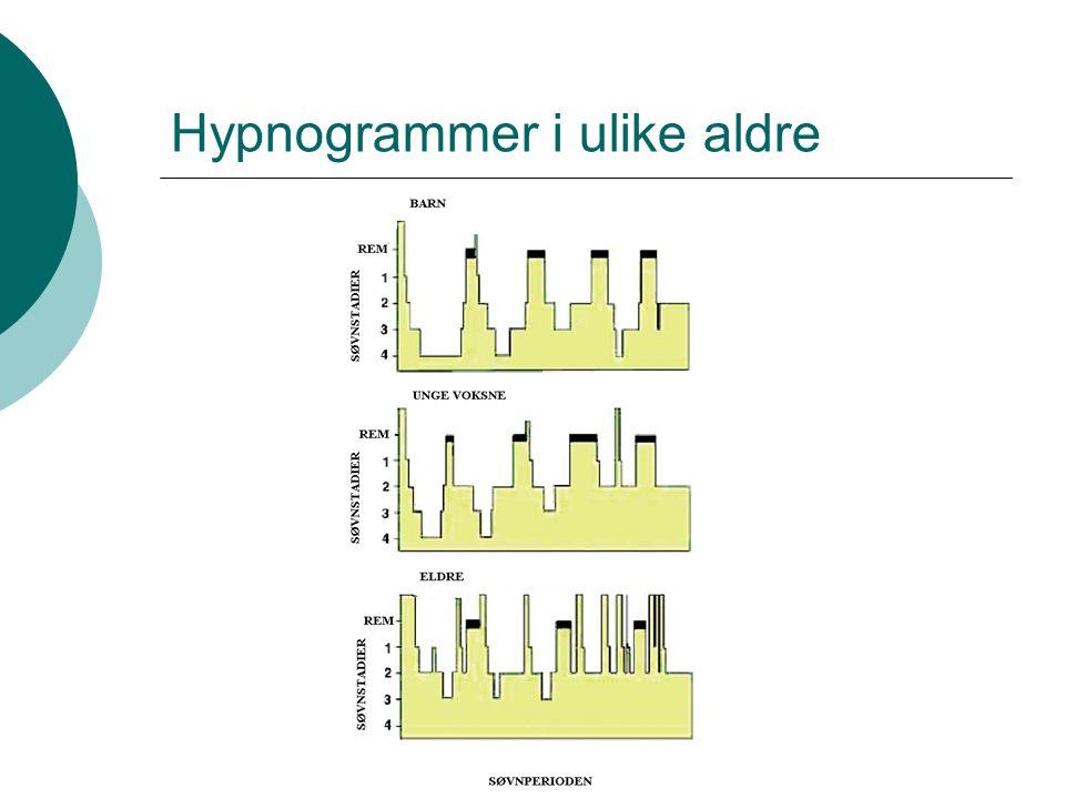 Hypnogrammer i ulike aldre
