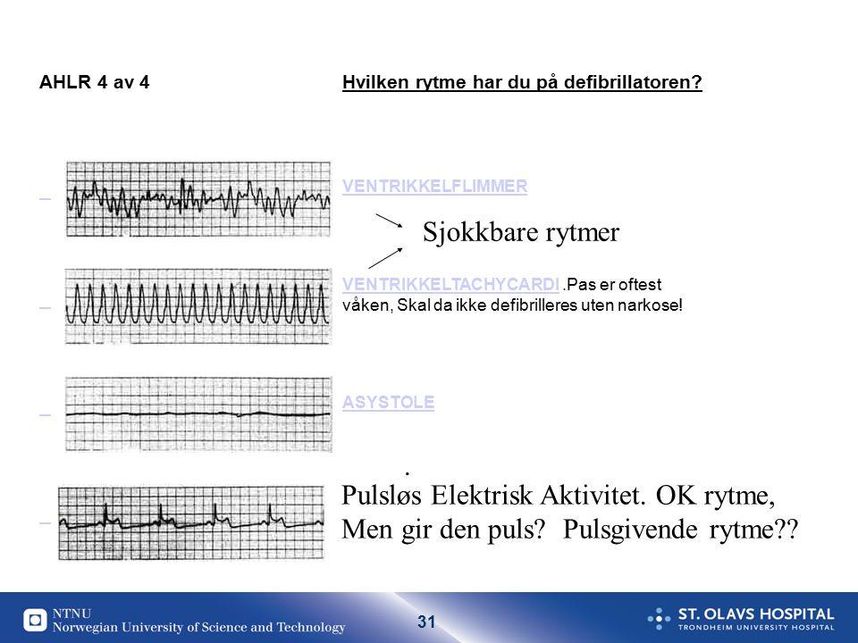 31 AHLR 4 av 4Hvilken rytme har du på defibrillatoren.