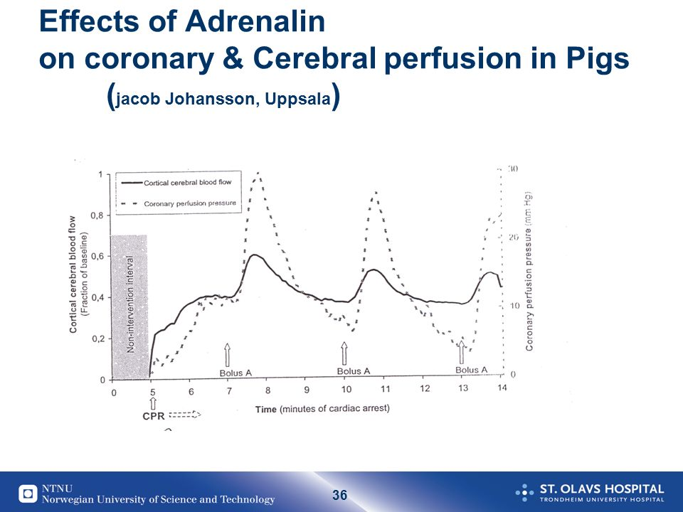 36 Effects of Adrenalin on coronary & Cerebral perfusion in Pigs ( jacob Johansson, Uppsala )