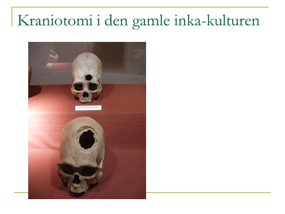 Kasuistikk: Herr B., f.1925 Enkemann, bor alene. Hj.spl.