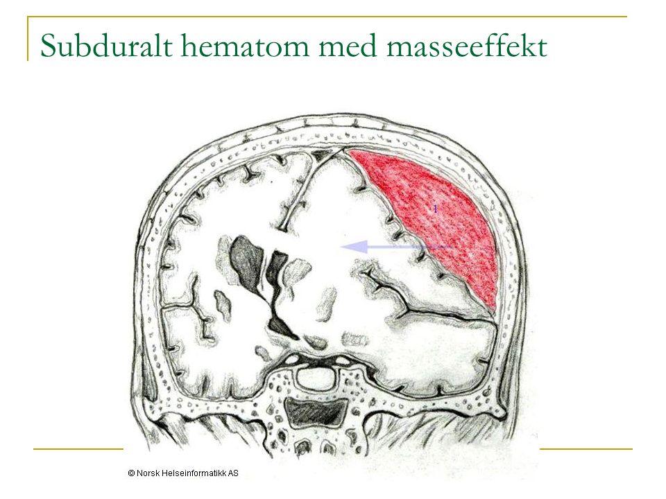 Herr B., CT kontroll 2 mndr. postoperativt