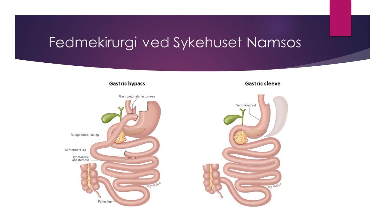Fedmekirurgi ved Sykehuset Namsos
